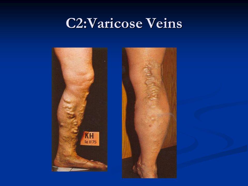 C2:Varicose Veins