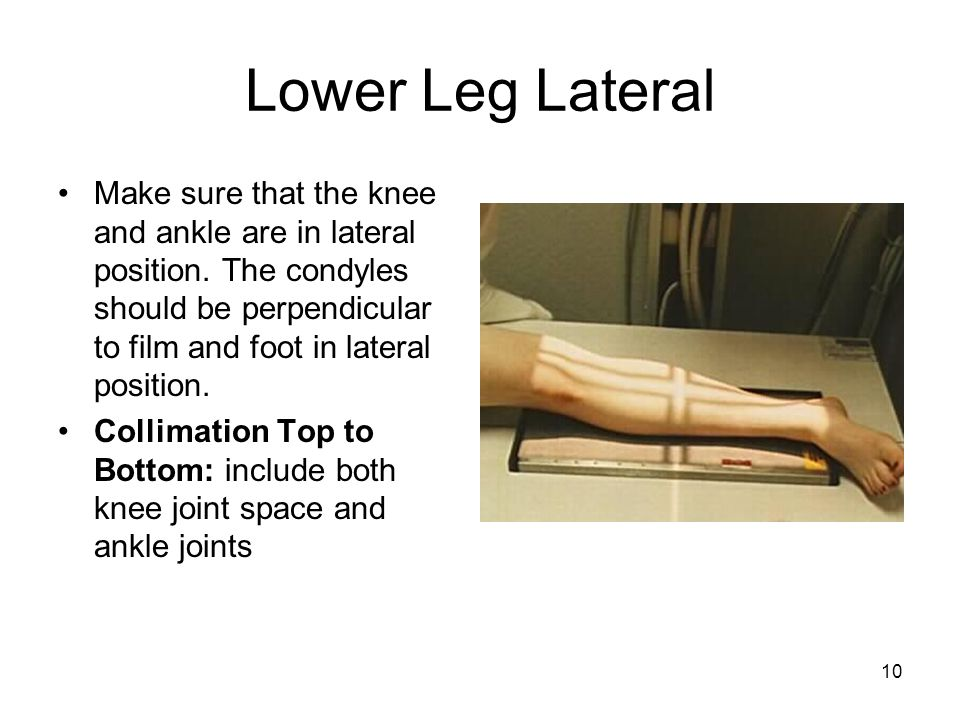 Lower Leg Lateral