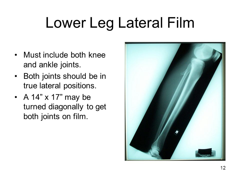 Lower Leg Lateral Film Must include both knee and ankle joints.