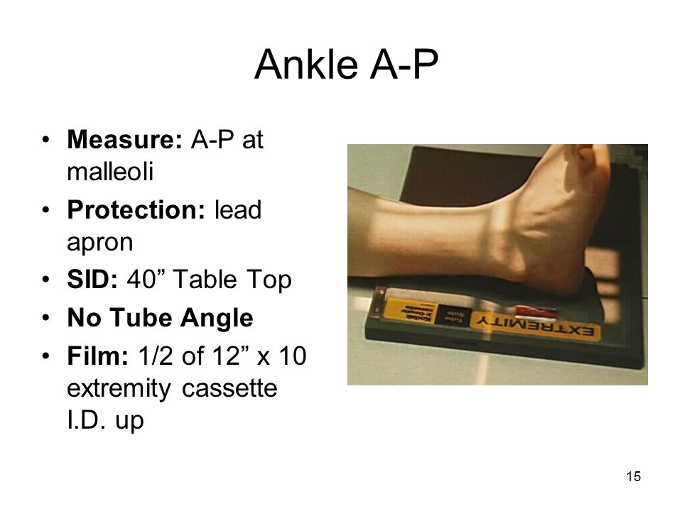 Ankle A-P Measure: A-P at malleoli Protection: lead apron