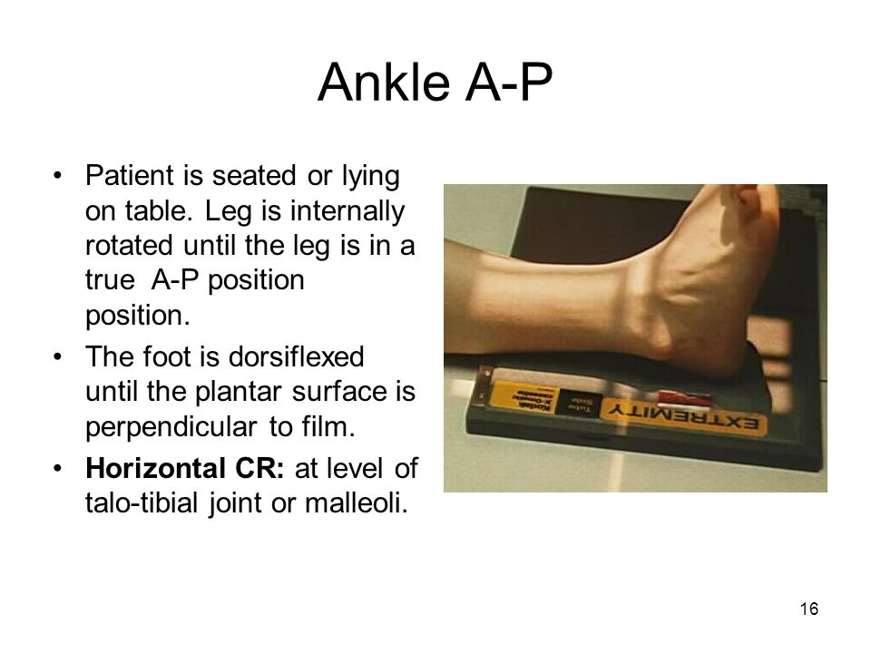 Ankle A-P Patient is seated or lying on table. Leg is internally rotated until the leg is in a true A-P position position.