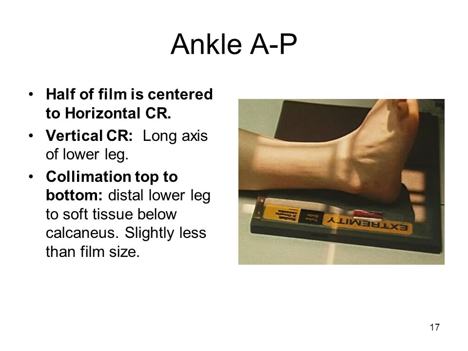Ankle A-P Half of film is centered to Horizontal CR.