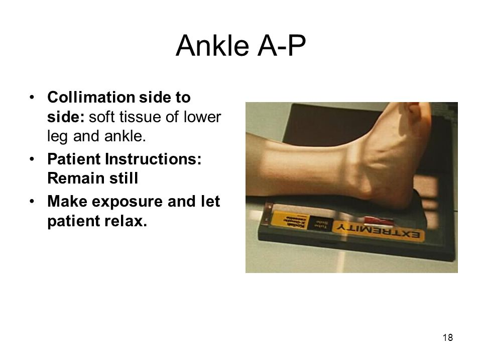 Ankle A-P Collimation side to side: soft tissue of lower leg and ankle. Patient Instructions: Remain still.