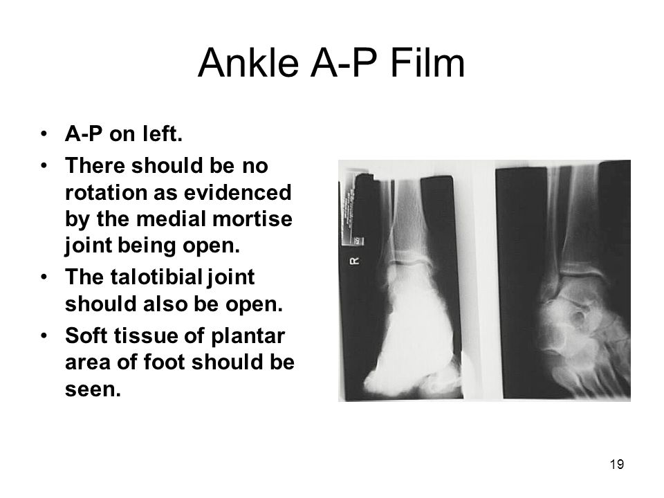Ankle A-P Film A-P on left.