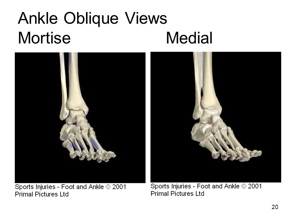 Ankle Oblique Views Mortise Medial
