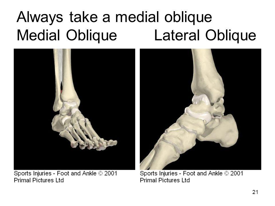Always take a medial oblique Medial Oblique Lateral Oblique