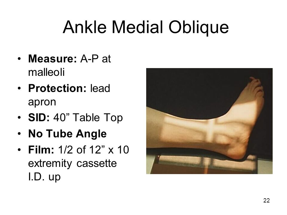 Ankle Medial Oblique Measure: A-P at malleoli Protection: lead apron