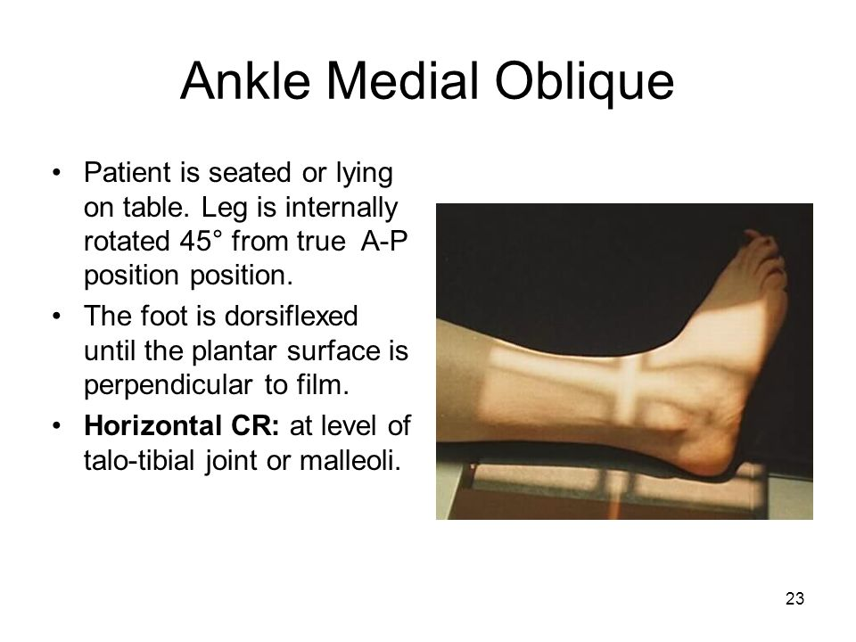 Ankle Medial Oblique Patient is seated or lying on table. Leg is internally rotated 45° from true A-P position position.