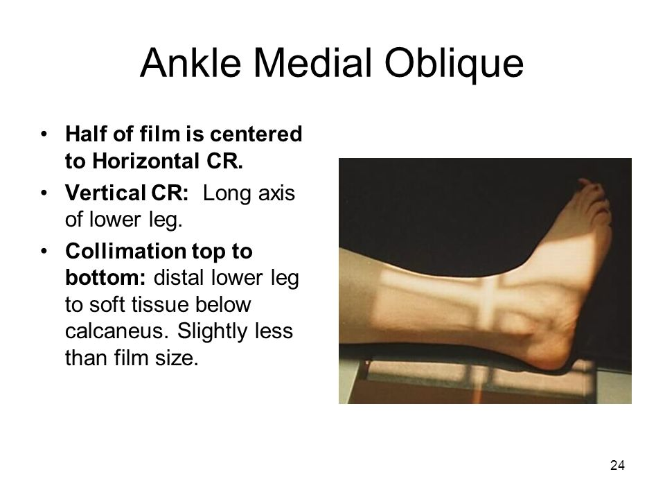 Ankle Medial Oblique Half of film is centered to Horizontal CR.