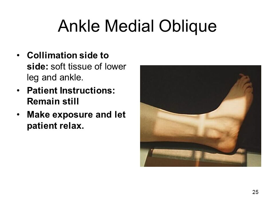 Ankle Medial Oblique Collimation side to side: soft tissue of lower leg and ankle. Patient Instructions: Remain still.