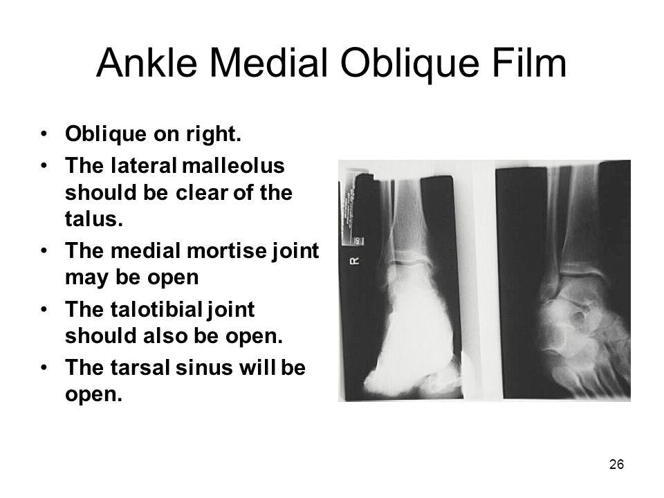 Ankle Medial Oblique Film