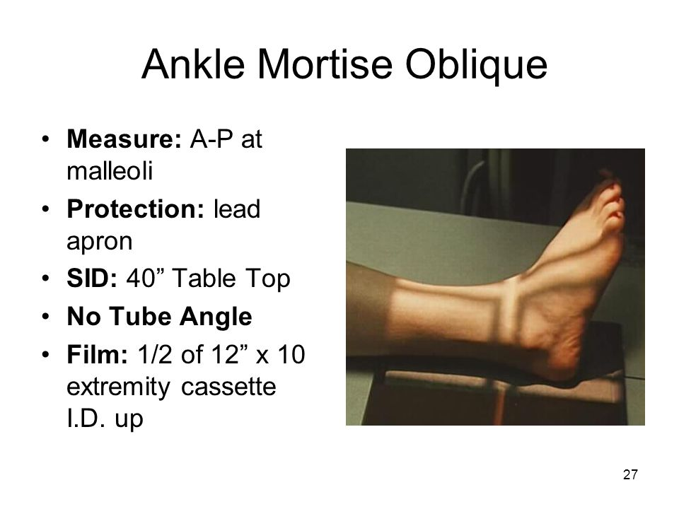 Ankle Mortise Oblique Measure: A-P at malleoli Protection: lead apron