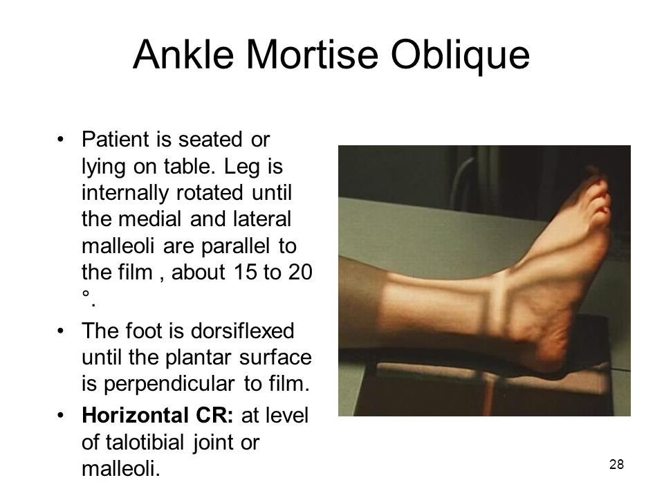 Ankle Mortise Oblique
