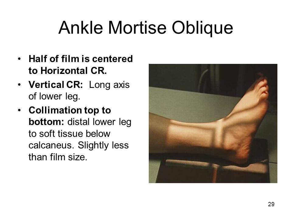 Ankle Mortise Oblique Half of film is centered to Horizontal CR.