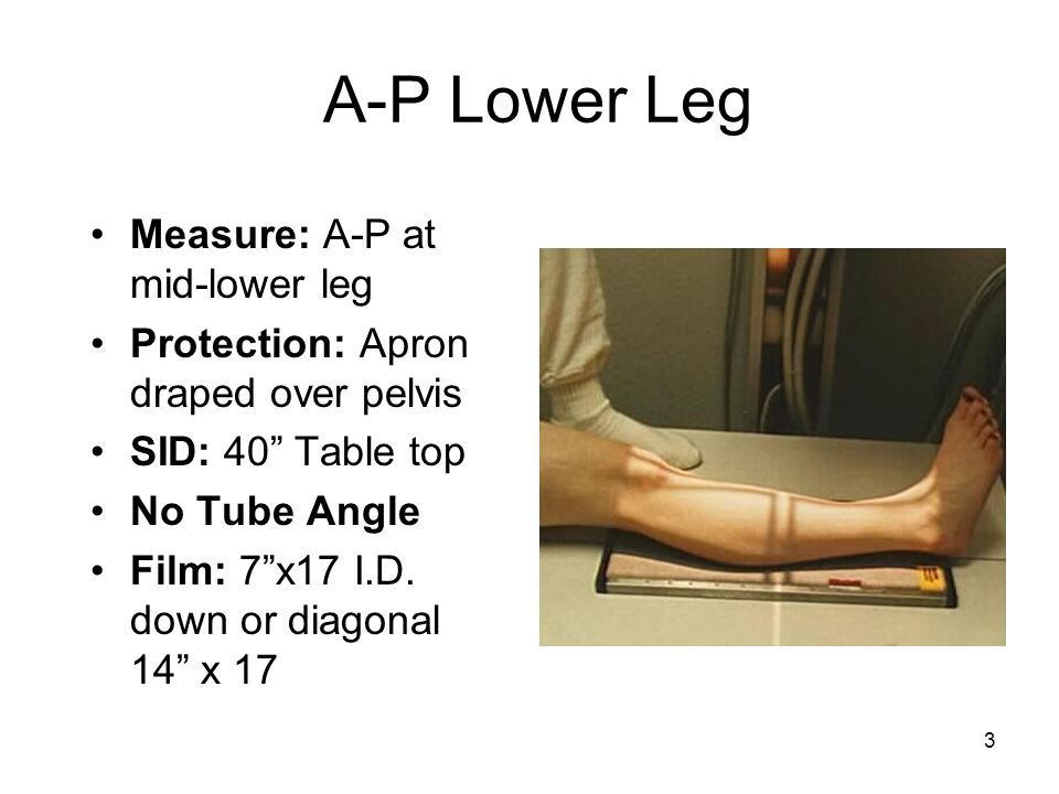 A-P Lower Leg Measure: A-P at mid-lower leg