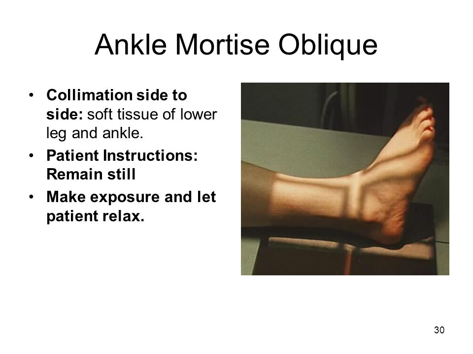Ankle Mortise Oblique Collimation side to side: soft tissue of lower leg and ankle. Patient Instructions: Remain still.