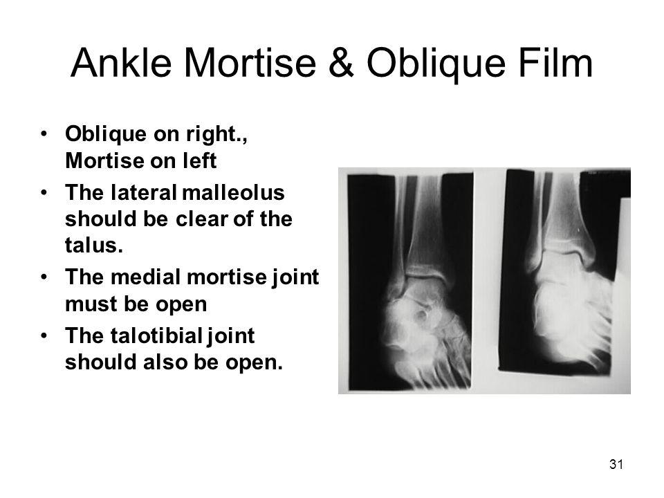 Ankle Mortise & Oblique Film