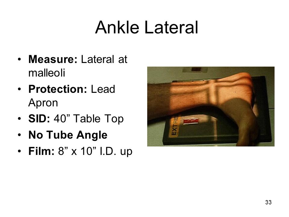Ankle Lateral Measure: Lateral at malleoli Protection: Lead Apron