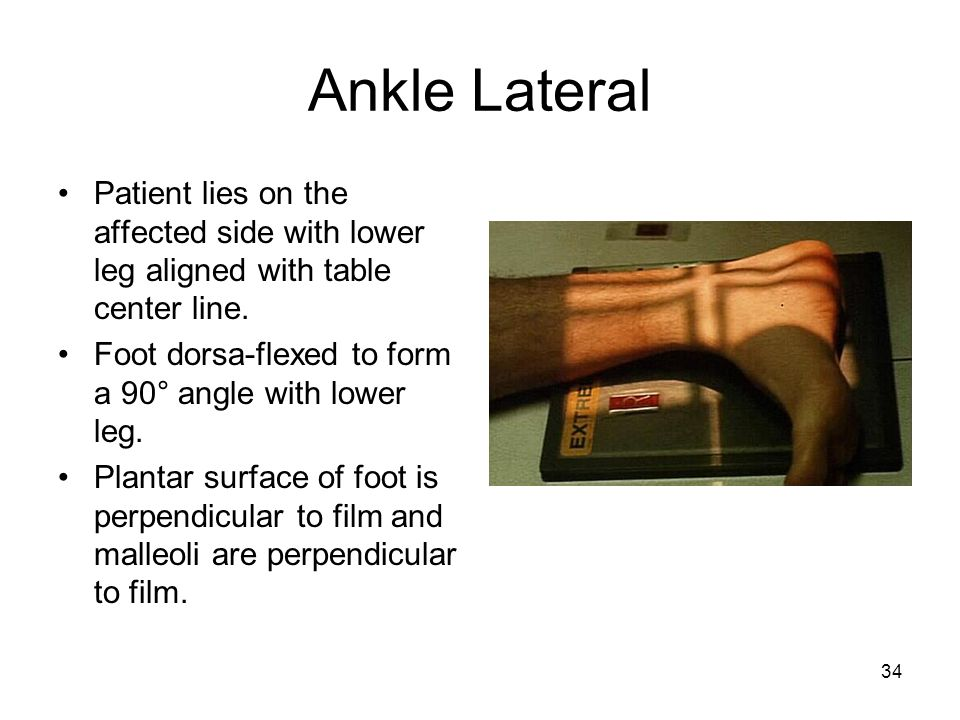 Ankle Lateral Patient lies on the affected side with lower leg aligned with table center line. Foot dorsa-flexed to form a 90° angle with lower leg.