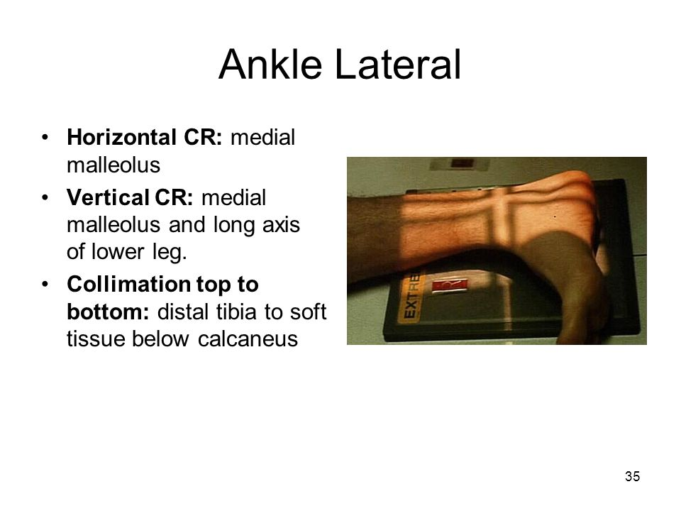 Ankle Lateral Horizontal CR: medial malleolus