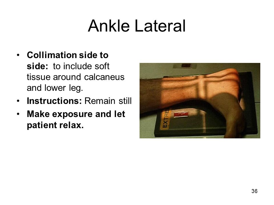 Ankle Lateral Collimation side to side: to include soft tissue around calcaneus and lower leg. Instructions: Remain still.
