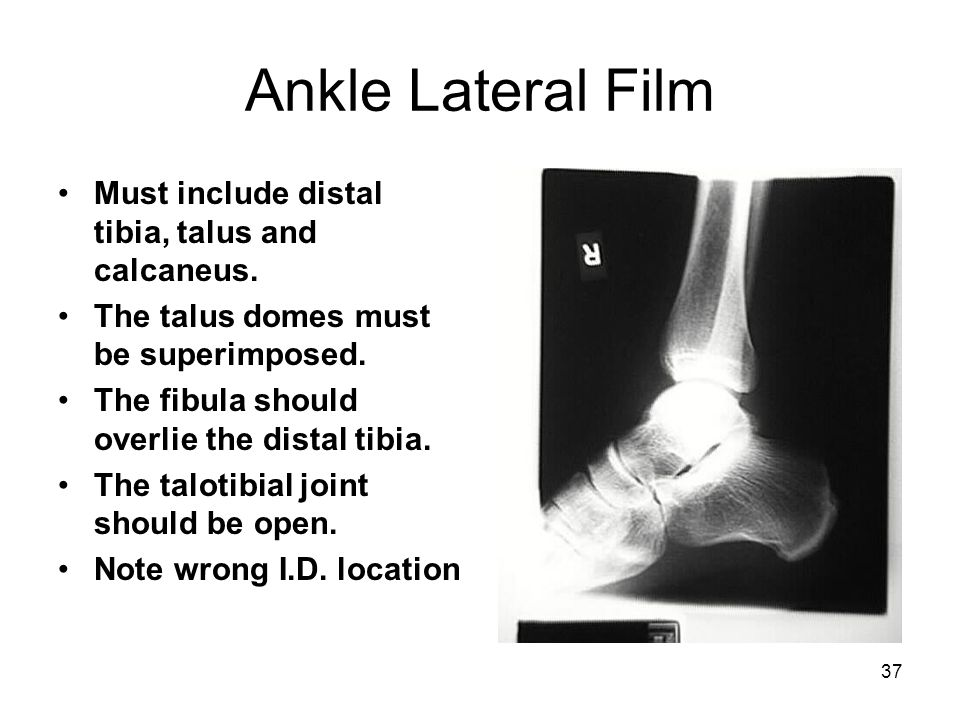 Ankle Lateral Film Must include distal tibia, talus and calcaneus.