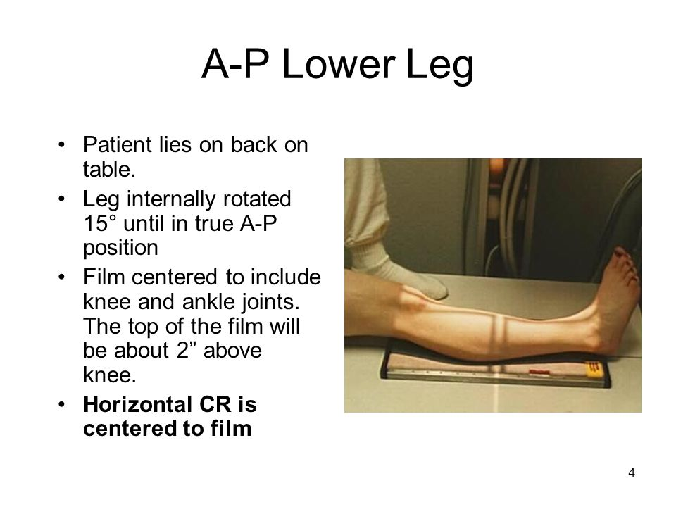 A-P Lower Leg Patient lies on back on table.