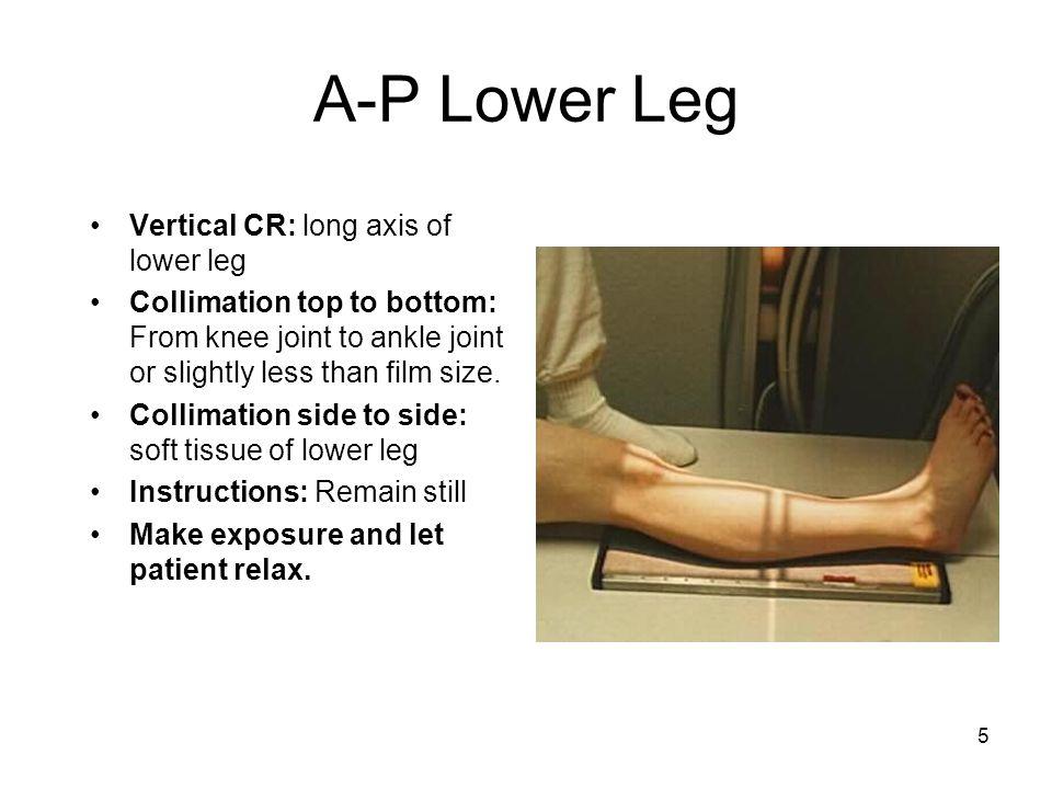 A-P Lower Leg Vertical CR: long axis of lower leg