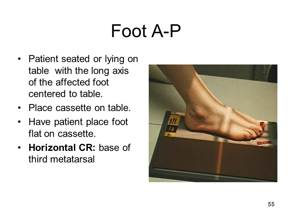 Foot A-P Patient seated or lying on table with the long axis of the affected foot centered to table.