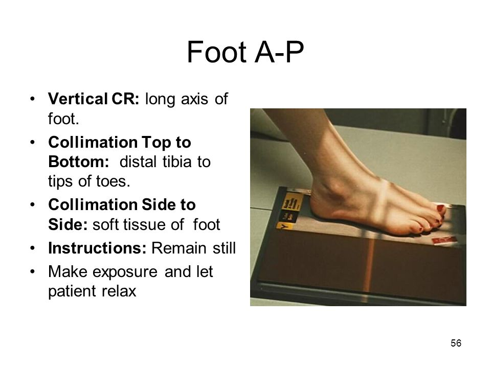Foot A-P Vertical CR: long axis of foot.