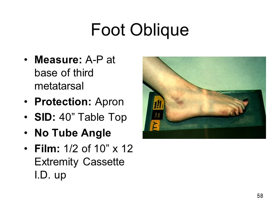 Foot Oblique Measure: A-P at base of third metatarsal