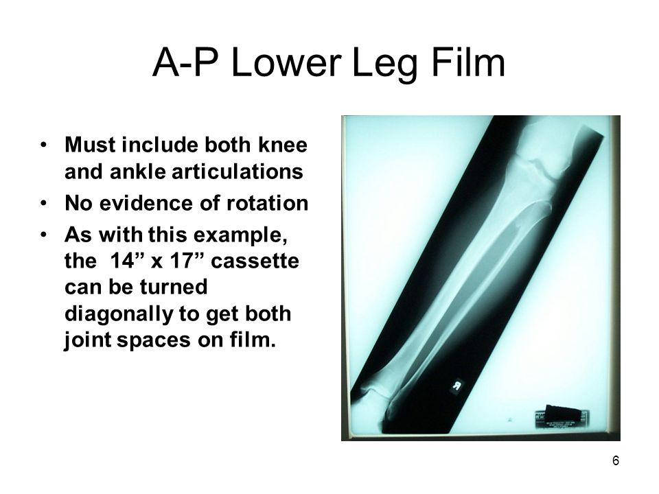A-P Lower Leg Film Must include both knee and ankle articulations