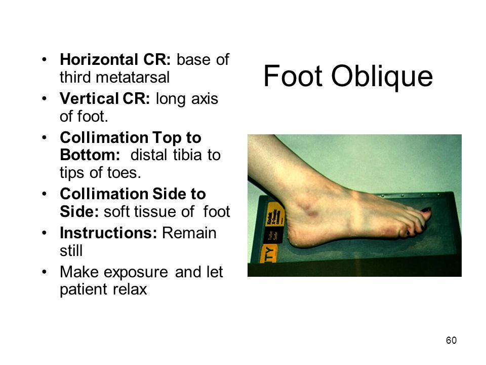 Foot Oblique Horizontal CR: base of third metatarsal