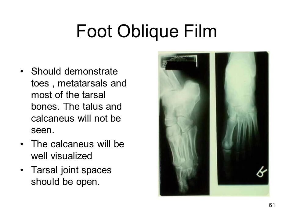 Foot Oblique Film Should demonstrate toes , metatarsals and most of the tarsal bones. The talus and calcaneus will not be seen.