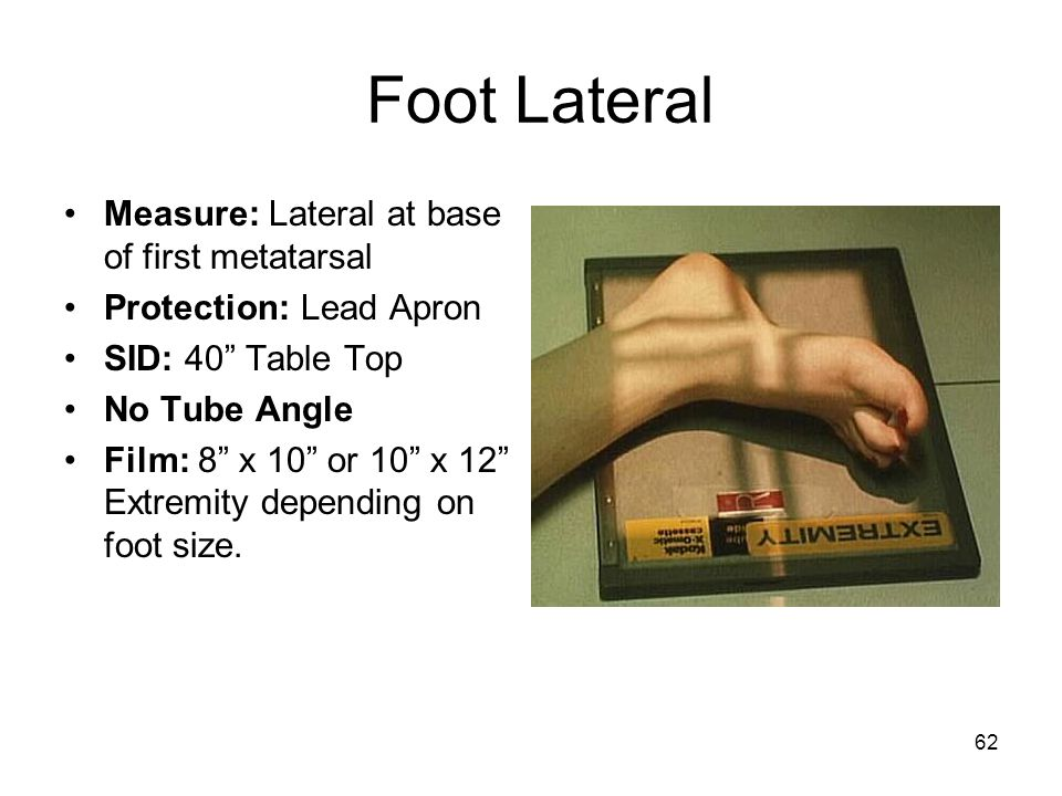 Foot Lateral Measure: Lateral at base of first metatarsal