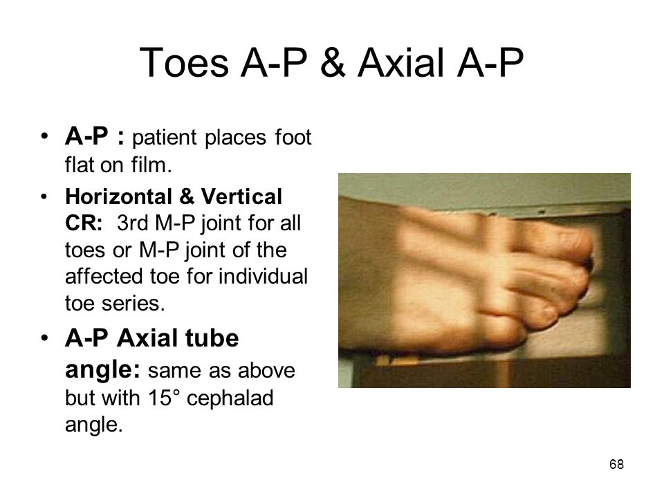 Toes A-P & Axial A-P A-P : patient places foot flat on film.