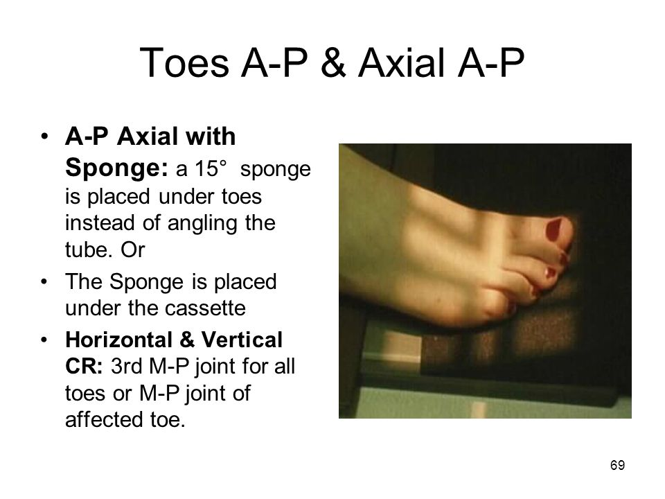 Toes A-P & Axial A-P A-P Axial with Sponge: a 15° sponge is placed under toes instead of angling the tube. Or.