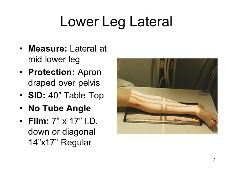 Lower Leg Lateral Measure: Lateral at mid lower leg