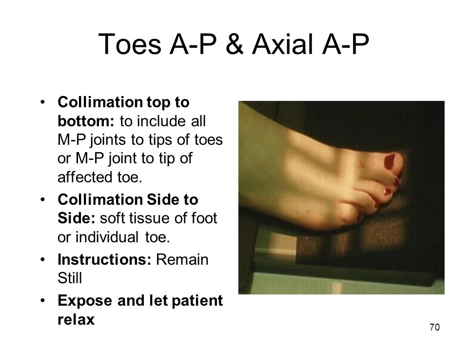 Toes A-P & Axial A-P Collimation top to bottom: to include all M-P joints to tips of toes or M-P joint to tip of affected toe.