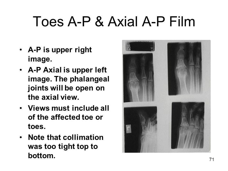 Toes A-P & Axial A-P Film
