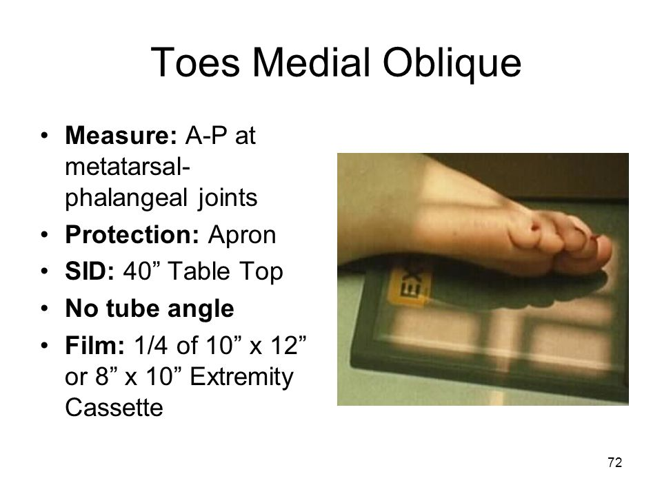 Toes Medial Oblique Measure: A-P at metatarsal-phalangeal joints