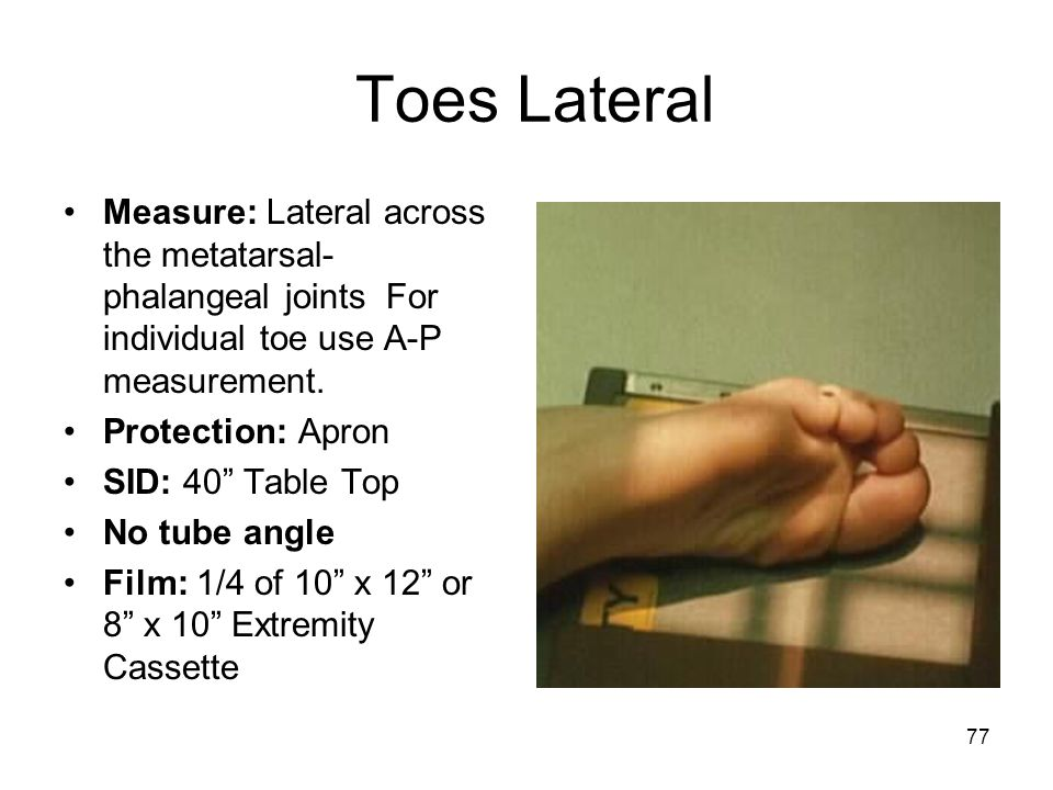 Toes Lateral Measure: Lateral across the metatarsal-phalangeal joints For individual toe use A-P measurement.