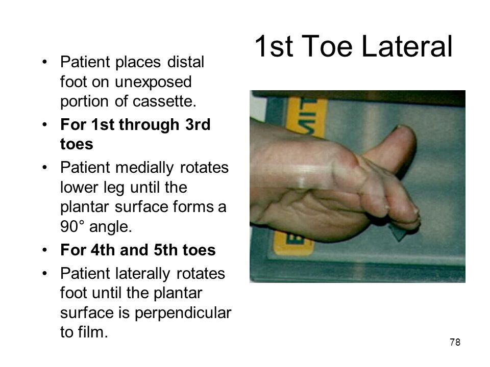 1st Toe Lateral Patient places distal foot on unexposed portion of cassette. For 1st through 3rd toes.