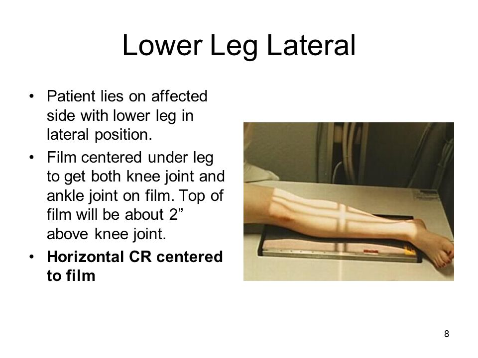 Lower Leg Lateral Patient lies on affected side with lower leg in lateral position.