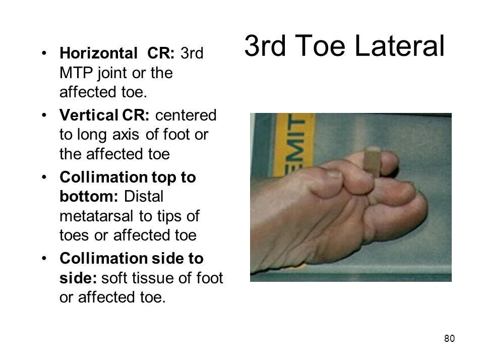 3rd Toe Lateral Horizontal CR: 3rd MTP joint or the affected toe.