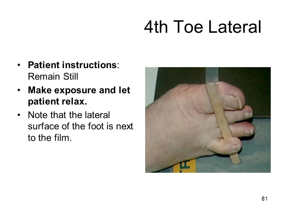4th Toe Lateral Patient instructions: Remain Still