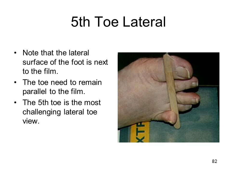 5th Toe Lateral Note that the lateral surface of the foot is next to the film. The toe need to remain parallel to the film.