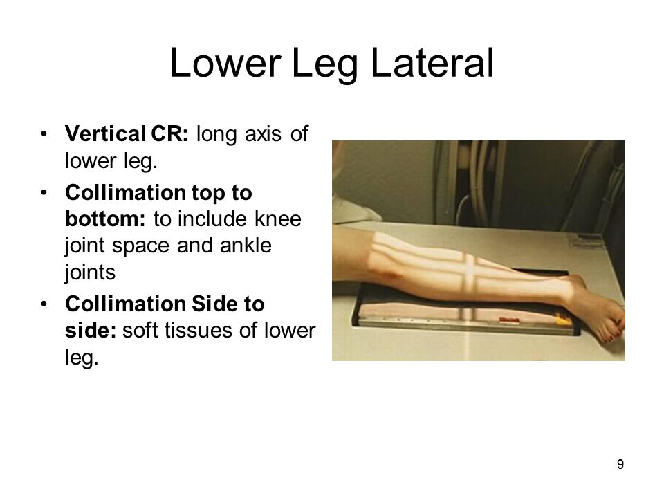 Lower Leg Lateral Vertical CR: long axis of lower leg.