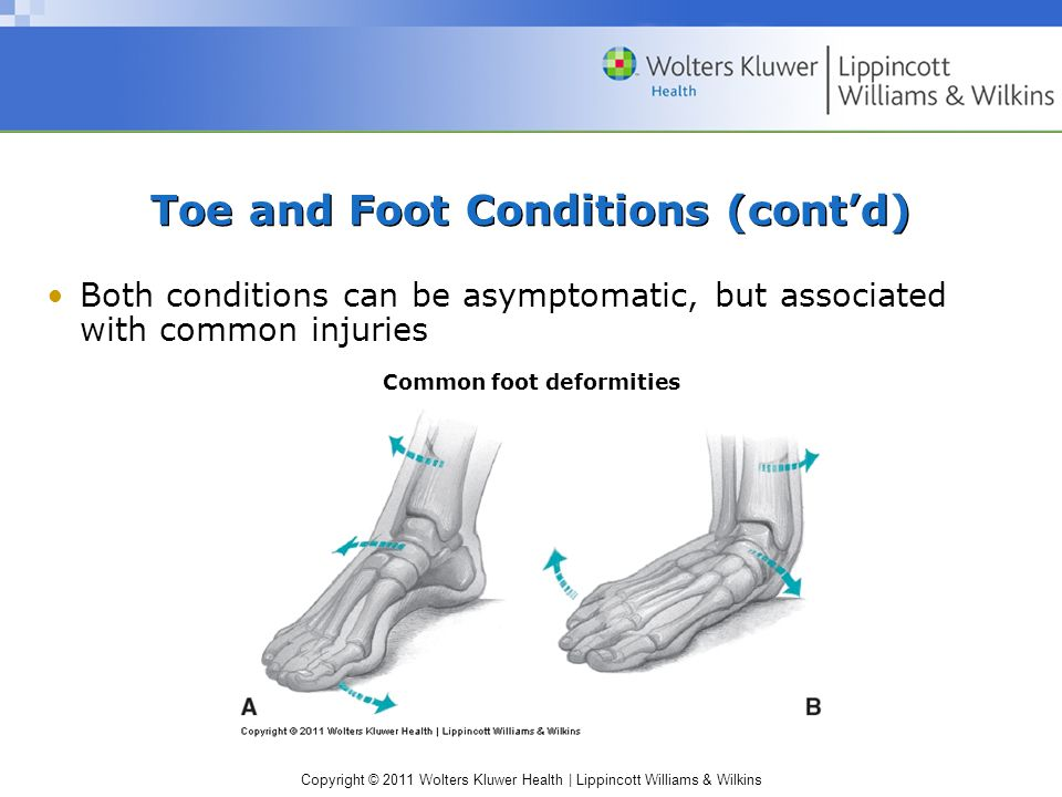 Toe and Foot Conditions (cont'd)