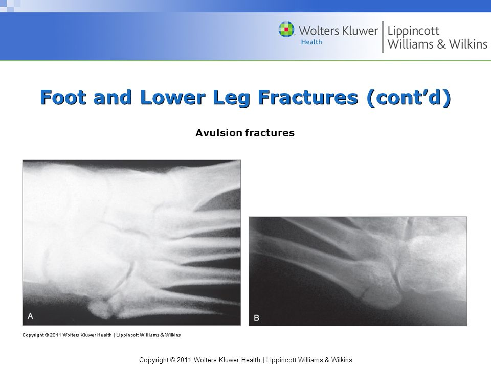 Foot and Lower Leg Fractures (cont'd)